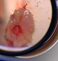 Embryon 7 semaines d'aménorrhée